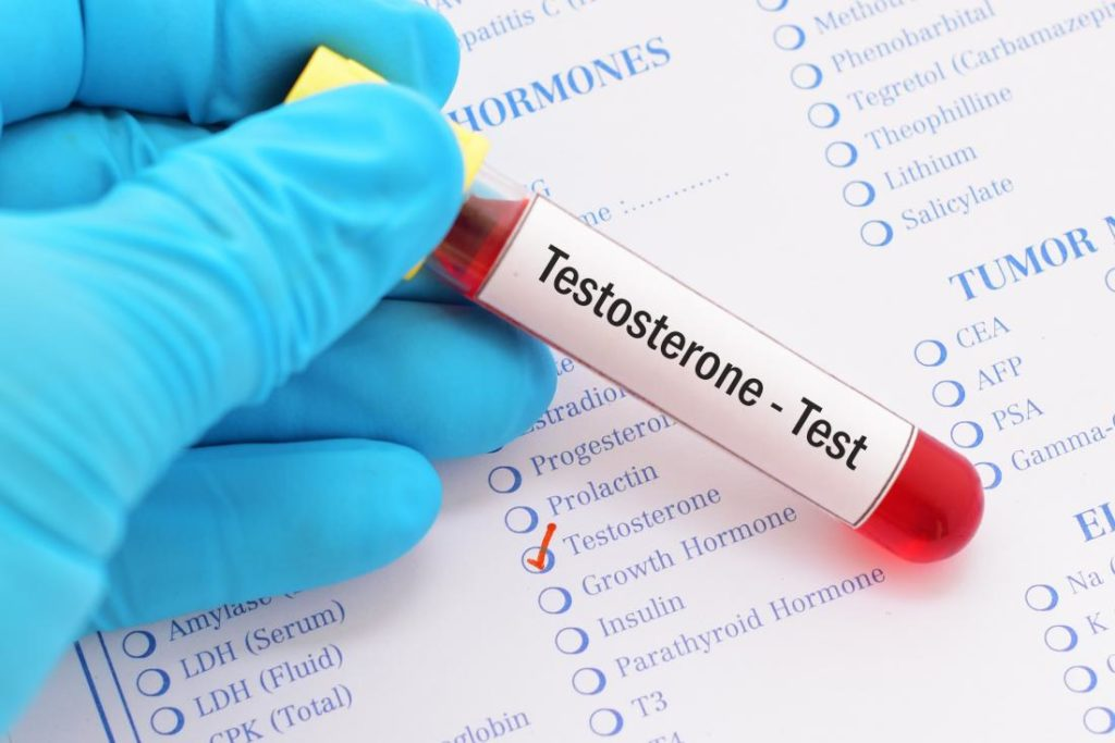 Blood test for testosterone online prescription