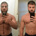Before and After Testosterone Therapy