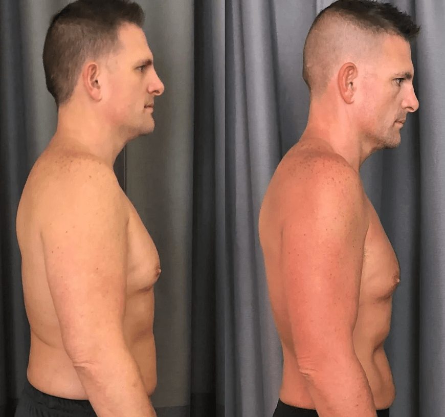 Testosterone Therapy Before and After Photos